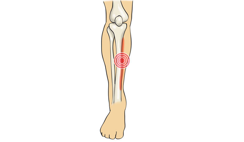 Ejercicios para lesión de periostitis tibial (también conocido como síndrome de estrés tibial medial).